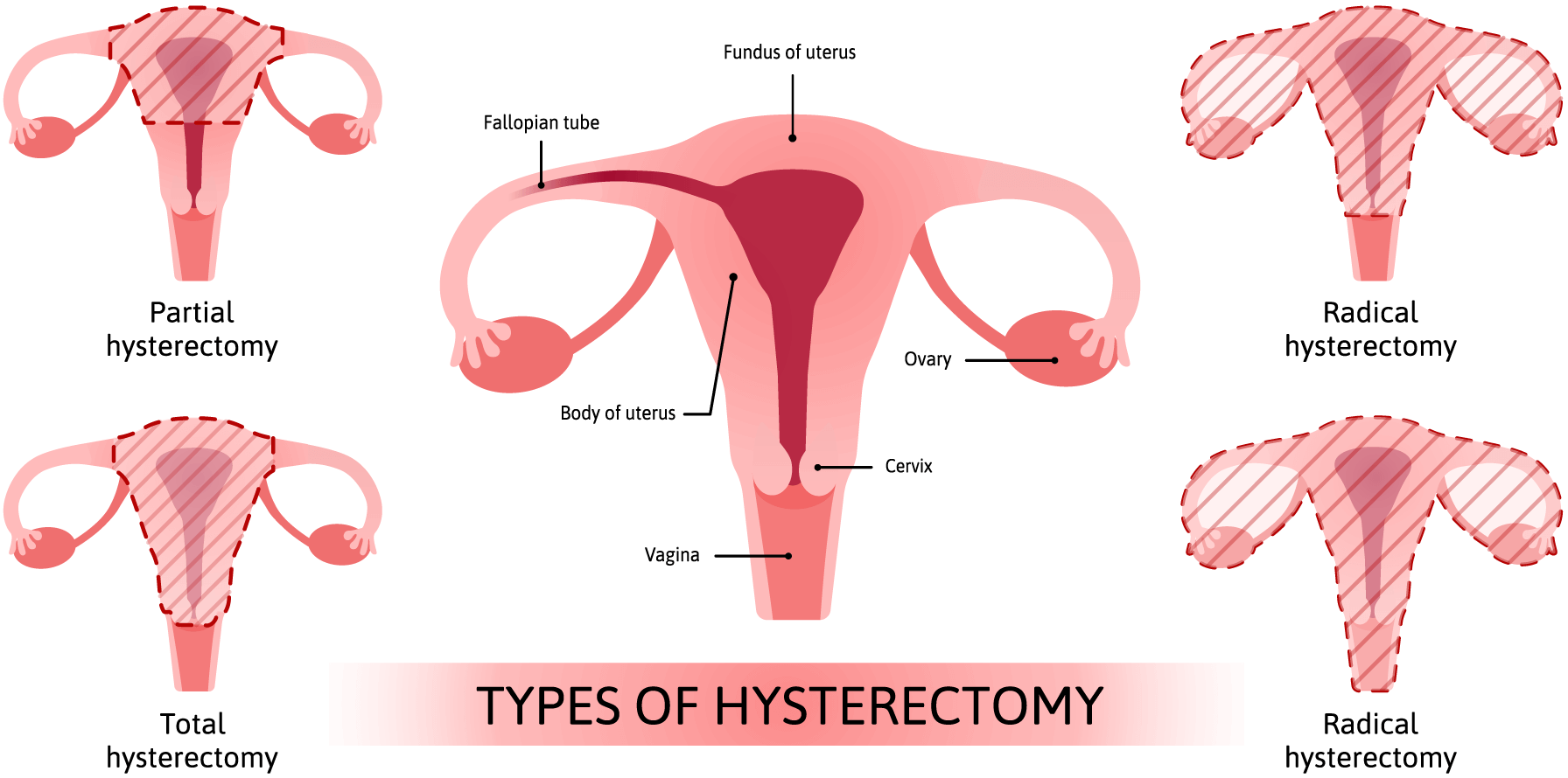 Hysterectomy | National Women's Health Network