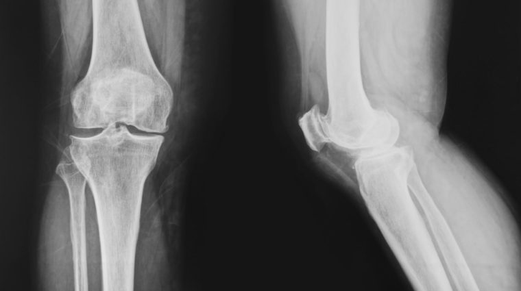 Bone X Ray(1)
